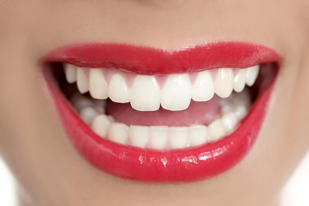 Beautiful shiny white smile