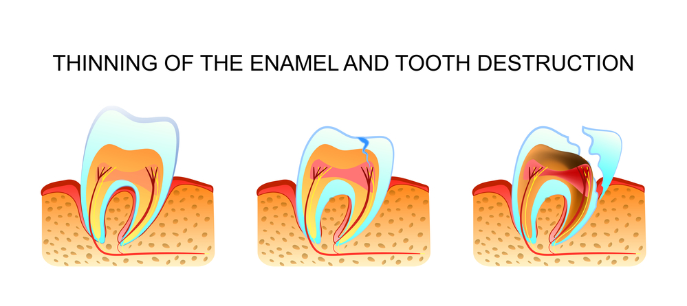 thinning enamel